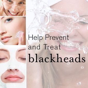 Blackheads are the worst! Today on our blog, how to best treat and prevent blackheads. #skincare