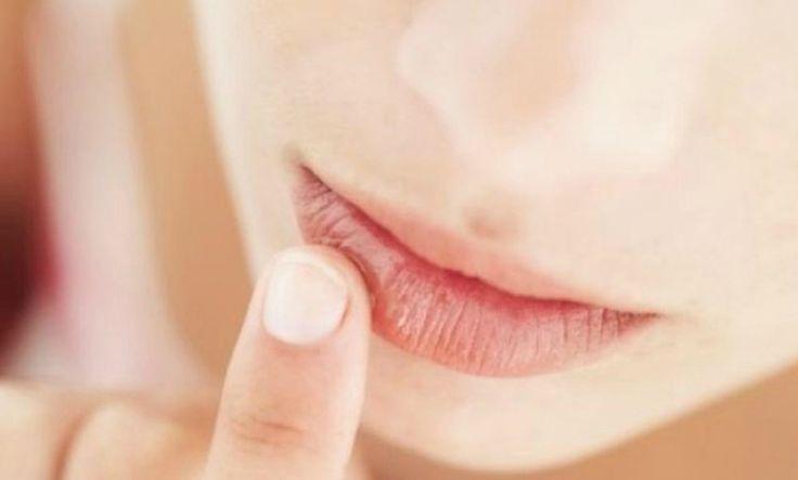 Remedios caseros para los labios agrietados - http://www.bezzia.com/remedios-caseros-para-los-labios-agrietados/