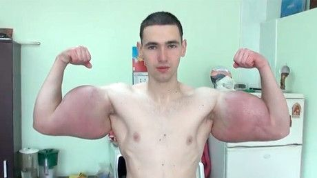 Russian showcases jaw-dropping foot wide biceps (VIDEO) https://tmbw.news/russian-showcases-jaw-dropping-foot-wide-biceps-video  A Russian wannabe-Hercules has flaunted his jaw-dropping foot wide biceps after undergoing synthol drug injections.Kirill Tereshin from Pyatigorsk, Russia, proudly paraded the painful-looking results of the injections Saturday, a technique used by some bodybuilders to help them bulk up.The slender 21-year-old's disproportionately bulging biceps measure 64cm (2ft)…