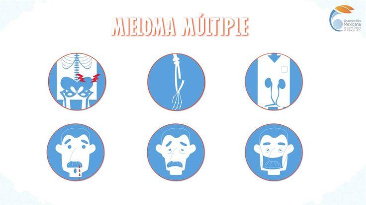 ¿Qué es el Mieloma Múltiple?