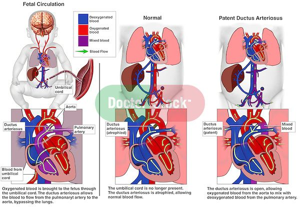 infant heart | Congenital Heart Defects - Patent Ductus Arteriosus. Depicts fetal ...