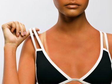 These natural remedies for sunburn will help your skin to heal while soothing pa