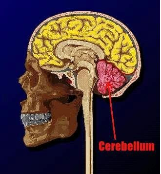 Cerebellar Ataxia Information !!  Damaged From Stroke DISCONNECT  ,