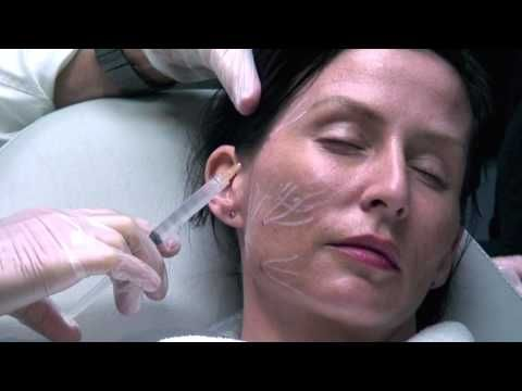 Sculptra For Temples And Hollow Cheeks Watch Live