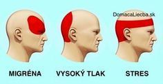Ako sa zbaviť bolesti hlavy za 5 minút bez užitia tabletiek a liekov - Domáca liečba