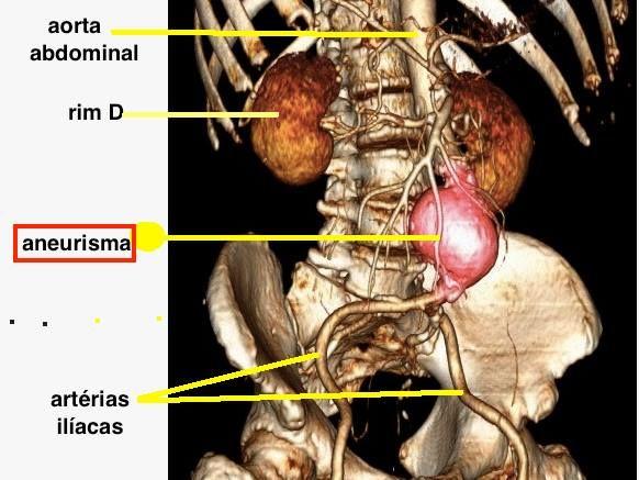 Aneurisma de Aorta Abdominal. Situado logo acima da bifurcação das artérias ilíacas