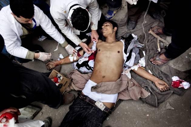 Egypten. Fire anti-Mubarak demonstranter er blevet ramt af skud. På et improviseret felthospital kæmper læger for at redde deres liv. Tre af de fire - heriblandt den unge mand på billedet - dør. Februar 2011.