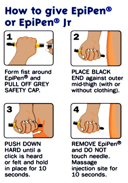 Anaphylaxis is a life threatening allergic reaction.  If you or someone you know has severe allergic reaction, talk to your doctor about carrying an epinephrine pen, it can save your life!
