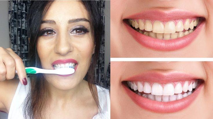 Doğal Yoldan Diş Beyazlatma Yöntemi (Evde)