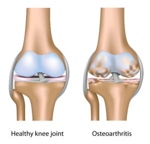 http://www.apotekol.com/solusi-jitu-atasi-nyeri-sendi/ Pengapuran sendi atau nyeri sendi menyerang semua bagian tulang rawan yang ada di tubuh terutama di bagian bawah tubuh