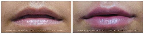Lip enhancement using Juvederm, Retsylane...collagen Fillers.  See more at: www.rivieralaser.com   http://track.markethealth.com/SH2vm