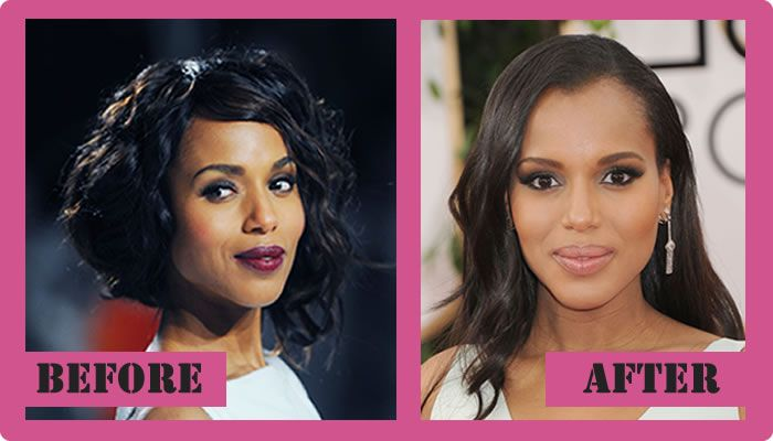 Kerry Washington Plastic Surgery Before And After Kerry ...
