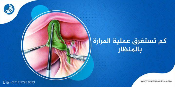 كم تستغرق عملية المرارة بالمنظار وما هي النصائح الواجب اتباعها قبل الجراحة