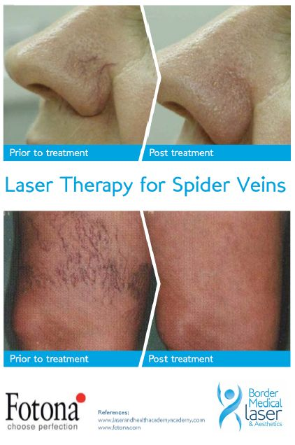 Spider Veins removed with Laser Therapy?! Yes please! Effective, and amazing way to remove superficial veins! #LaserLove #ConfidenceisKey #FotonaLasers