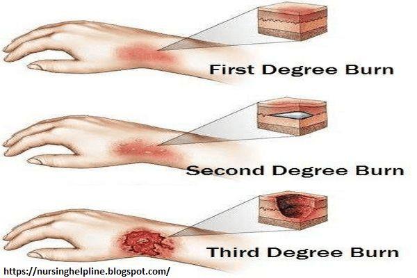 First Degree Burn | Home remedies for burns, Degree burns ...
