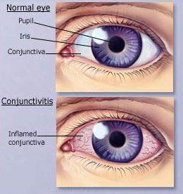 Conjunctivitis  www.macfarlaneoptometrist.com.au/Conjunctivitis