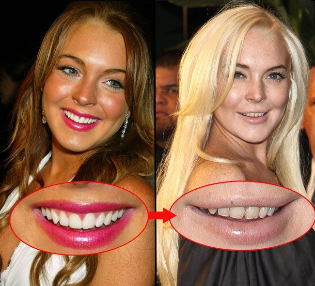"""Lindsay Lohan has changed radically since becoming dependent on the parties and harmful substances. A healthy adolescence and expensive drug habit, became only a shadow covered with freckles and """"improved"""" Botox."""