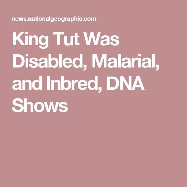 King Tut Was Disabled, Malarial, and Inbred, DNA Shows