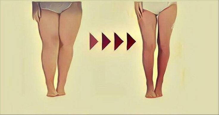 Losing weight is a difficult task, especially when the target is burning thigh fat. In your attempting to find the way how to shape that area, it is necessary to follow some rules, advised by many experts and famous trainers. The right way is to combine targeted exercises and a well-balanced diet which is a […]