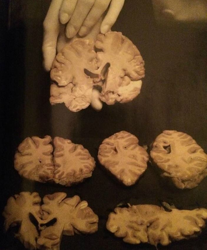 Slices of John Wayne Gacy's brain. He donated the organ to science after his execution. Studies have not revealed any physical abnormalities with the killer's brain.