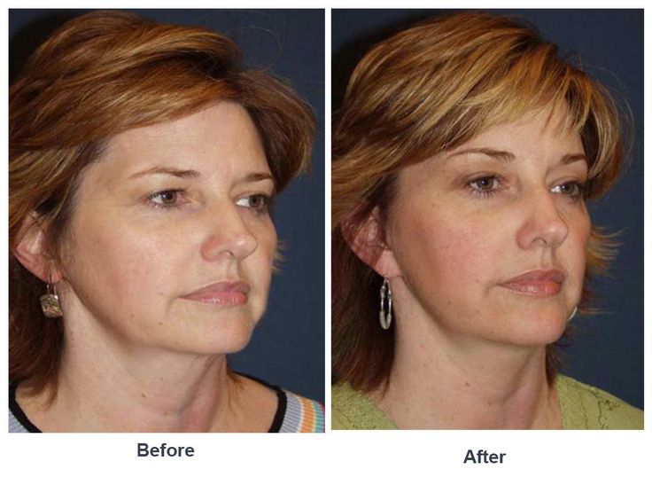 Procedures Performed Endoscopic Brow Lift: Lateral Brow Lift Signature Lift
