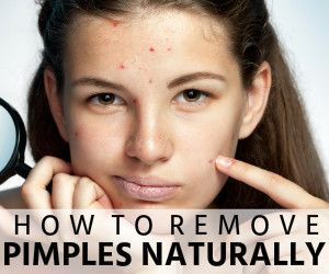 how to get rid of sweat pimples overnight