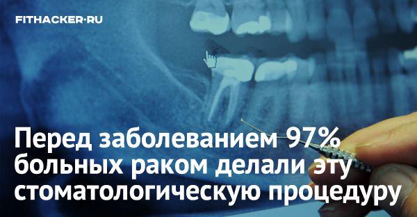 Эта распространённая стоматологическая процедура — вызывает рак!
