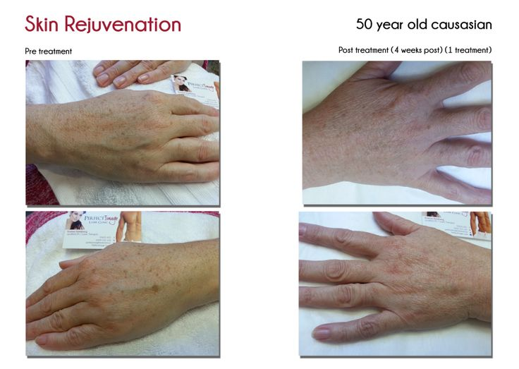 skin rejuvenation of the hands.