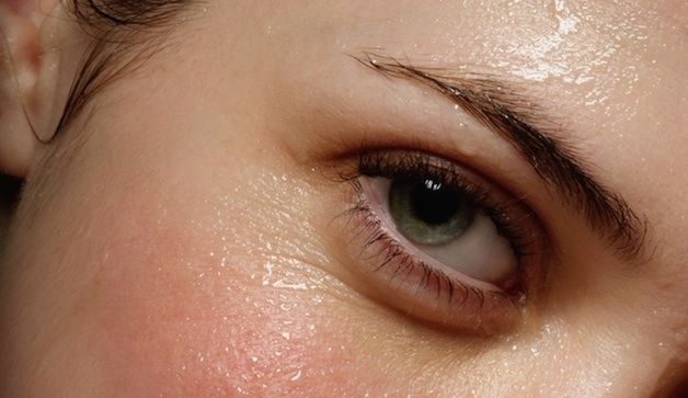 Suggested treatment for Hyperhydrosis = excessive sweating all the time
