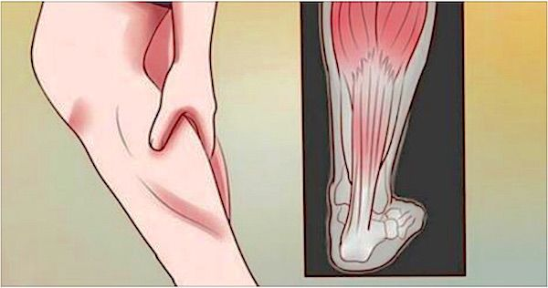 Leg cramps are not, in themselves, a serious illness, but they go hand in hand with many chronic disorders, and they can be miserable to those afflicted by them. A cramp, by definition, is a painful tightening of muscle that can last a few seconds or several minutes. They can also come in waves, you may have one, or you may have several, coming one on top of another. This can prevent quality sleep, which leads to a whole new set of problems. It also lessens a person's quality of life.