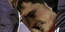 Casillas, operado hoy, estará entre ocho y doce semanas de baja