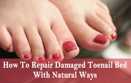 83 Best Toe Nail Fungus Treatment Images On Pinterest
