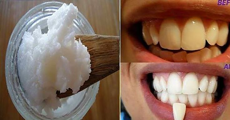 Thumb Diga adeus ao mau hálito, placa, tártaro e mate bactérias nocivas em sua boca com apenas um ingrediente