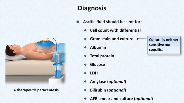 A review of the pathogenesis, clinical manifestation, diagnosis, and treatment of this acute complication of cirrhosis. This video is for educational purpose...