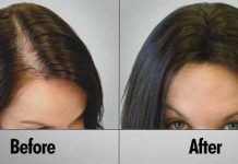 Rejuvalex Advanced Hair Growth Formula Review – Regrow Hair Naturally?  Get #Rejuvalex to regrow and repair your hair! This medical strength formula helps you fight back against #hair #loss and regrow thicker, longer, healthier hair FAST!   http://www.easybodyfit.com/rejuvalex/