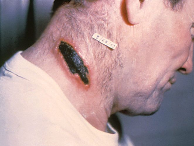 Anthrax Disease | ... virus images of virus anthrax disease pictures image of a virus what