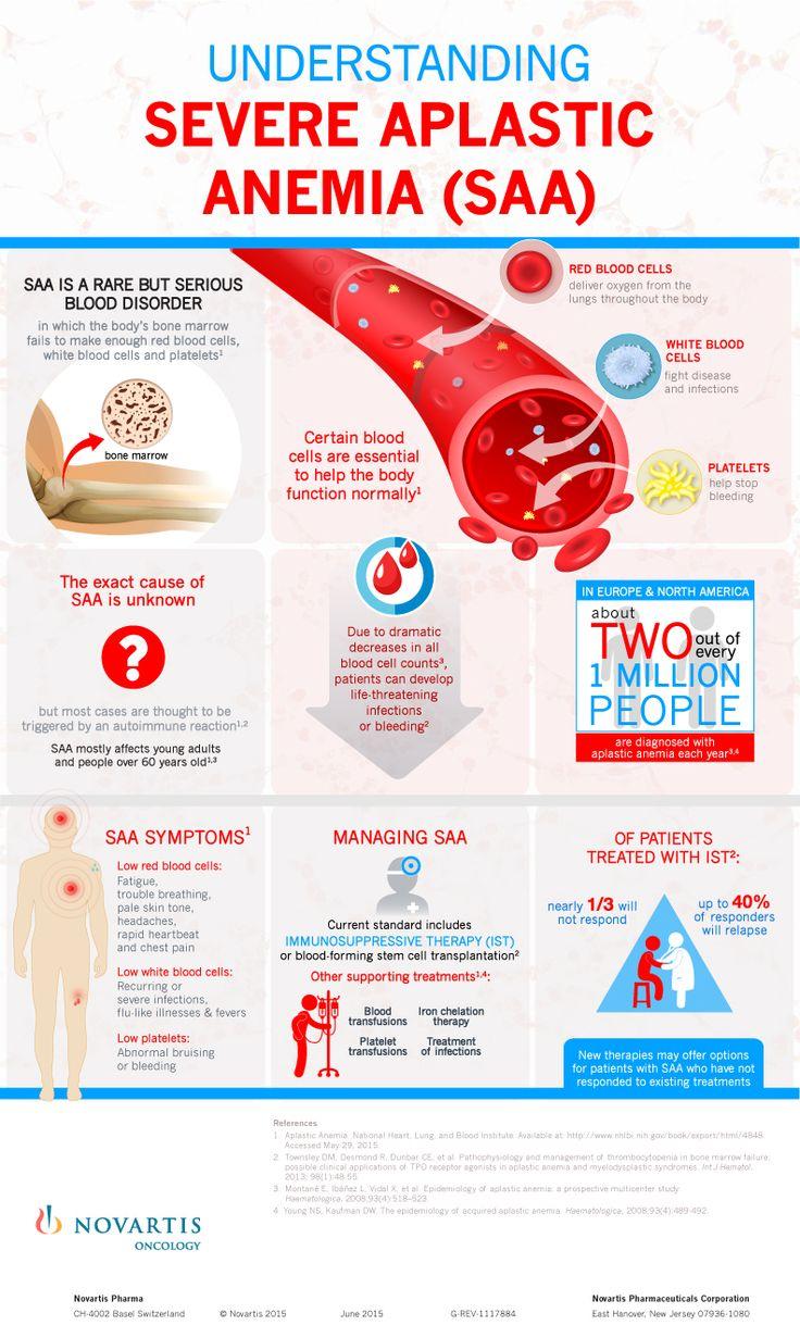 Understanding Severe Aplastic Anemia (SAA)