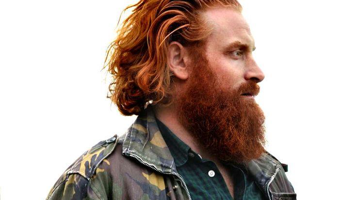 Skuespiller Kristofer Hivju befinner seg for tida i Belfast for å spille Tormund Giantsbane i tredje sesong av «Game of Thrones». (Foto: STEINAR FUGELSØY)