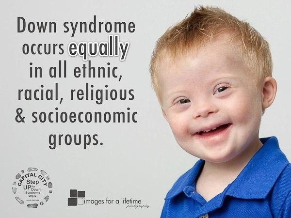El Síndrome de Down ocurre equitativamente en todos los grupos étnicos, raciales, religiosos y socioeconómicos...