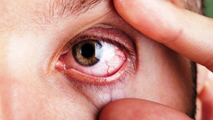 El síndrome de ojo seco es una enfermedad compleja que resulta incomodad, perturbación visual, y gran aumento del riesgo de infecciones en los ojos cuando hay disminución de la producción de lágrim…
