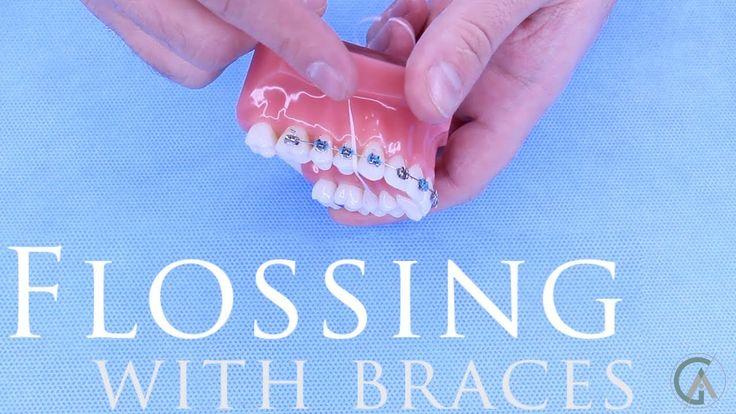 Braces explained flossing superfloss platypus flosser
