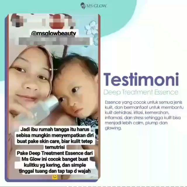 Cream Jerawat Aman Untuk Ibu Hamil