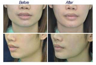 It is a great NYC Botox procedure with Minimum Pain. This Botox injection technique allows doctors to reduce the flare and width of a patient's wide jaw line without surgery. Reducing a wide jawline and slimming the lower face helps to improve facial harmony and to soften the appearance of a round face into a more oval and gentle one. Some people are genetically predisposed to have wide jaw line and some others develop it through habits like teeth grinding and frequent gum chewing.