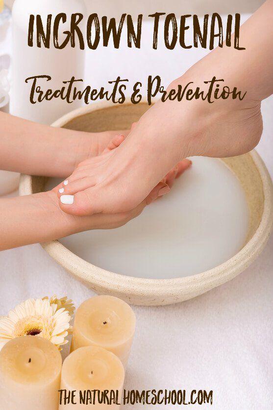 how to cut an ingrown toenail