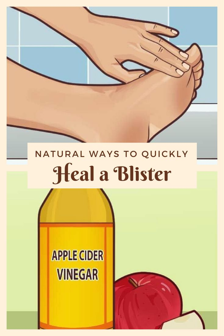 Natural ways to quickly heal a blister