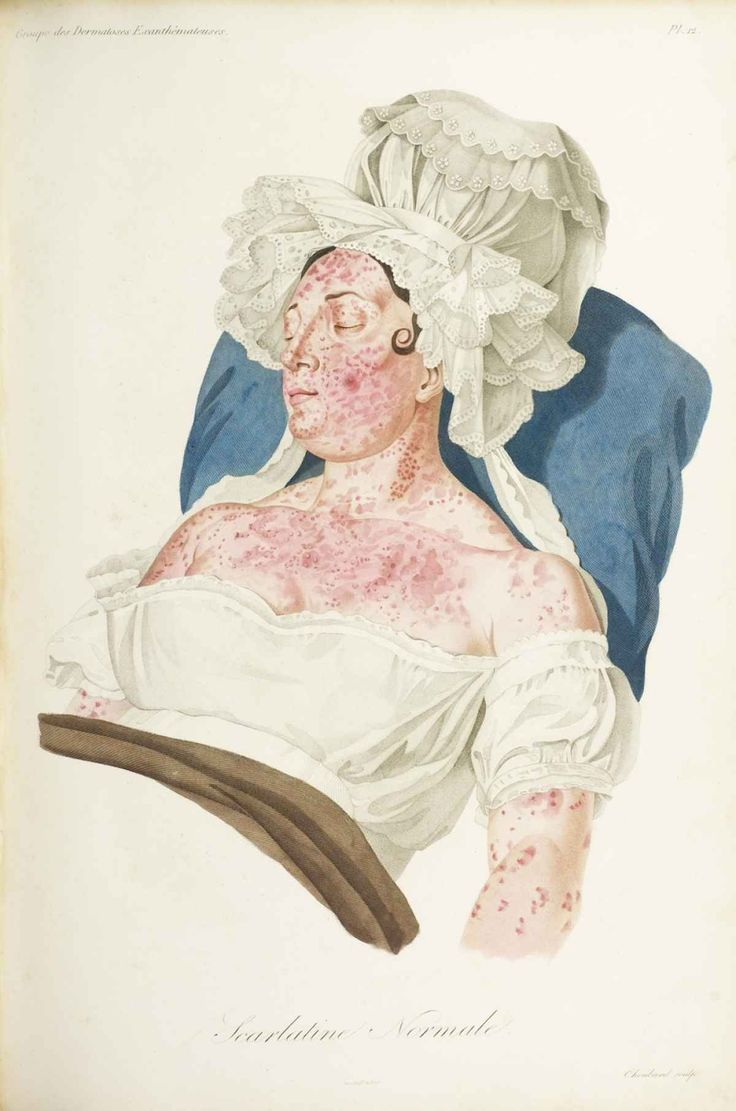 Illustration of a scarlet fever rash,  made  by a French dermatologist in 1833.