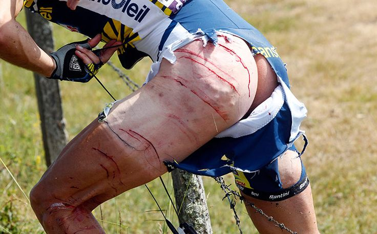 Johnny Hoogerland. Hit by a car & thrown into barbed wire in the Tour de France of 2011. Still finished the Tour. These guys are the hardest guys in the world!