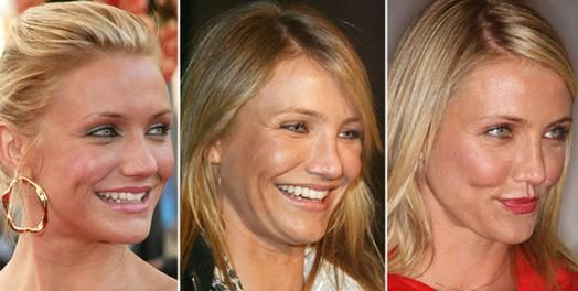 Cameron Diaz Nose Job Before After Picture