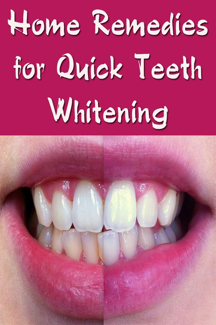 Colgate teeth whitening teeth whitening products pinterest teeth - Home Remedies For Quick Teeth Whitening Blog By Fit