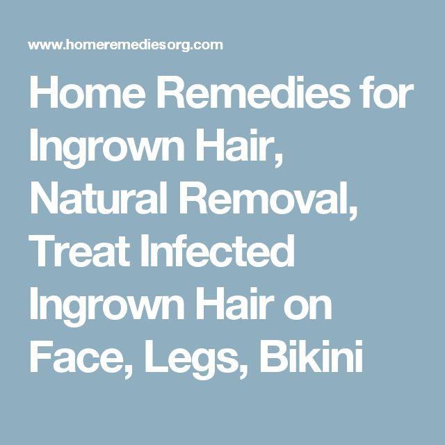 Home Remedies for Ingrown Hair, Natural Removal, Treat Infected Ingrown Hair on Face, Legs, Bikini